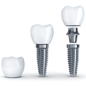 The three components of a dental implant: post, abutment, and crown